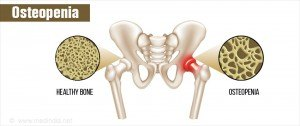 osteopenia-decreased-bone-density